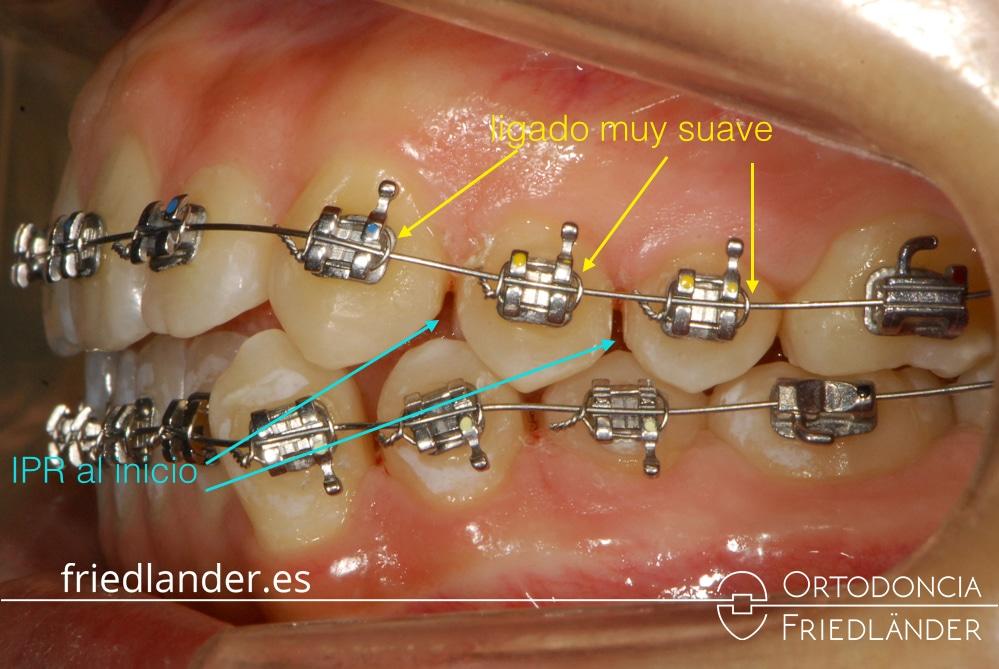 ortodoncia barcelona tratamiento