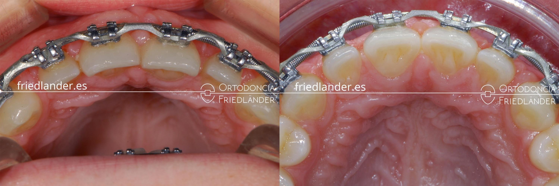 ortodoncia friedlander barcelona carillas laterales espacios con brackets