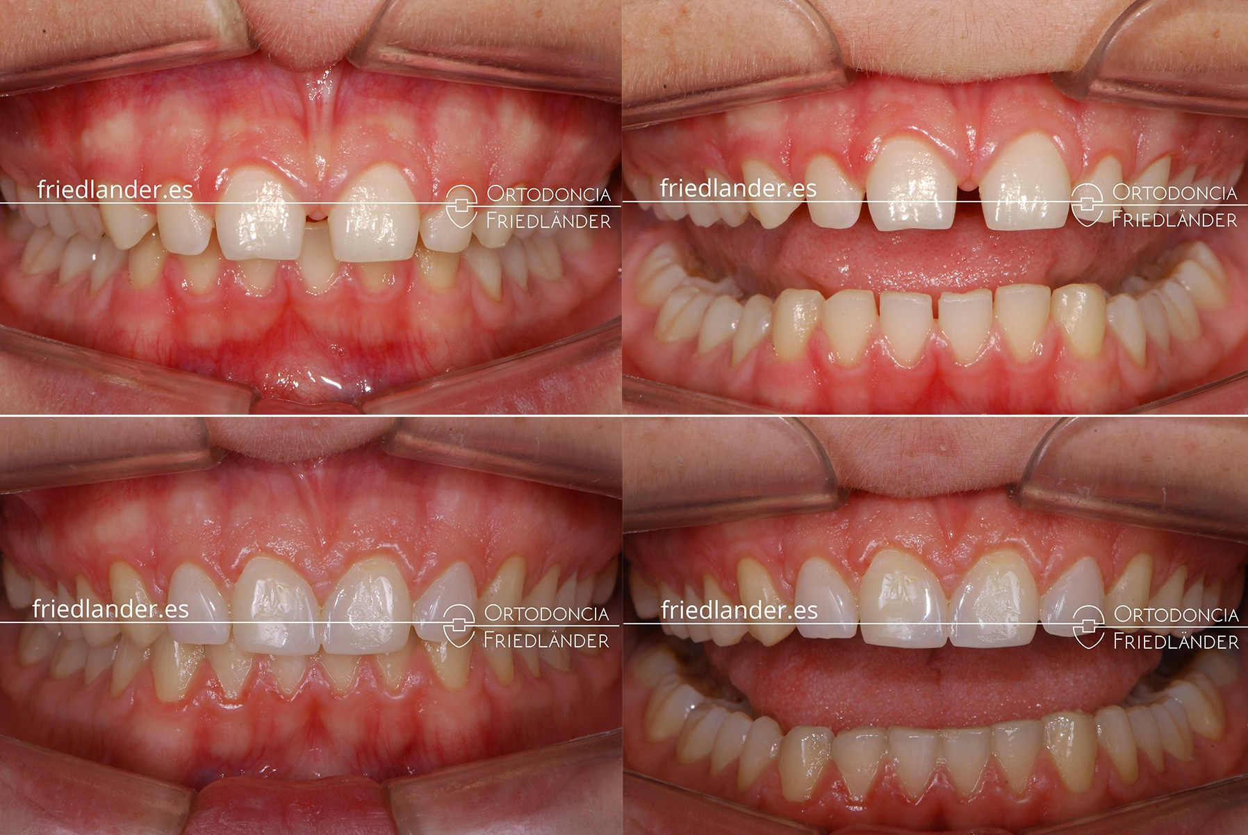 ortodoncia friedlander barcelona carillas laterales estetica antes despues