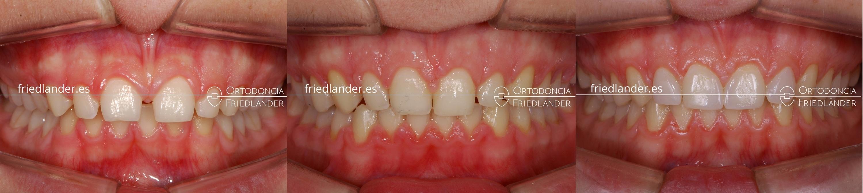 ortodoncia friedlander barcelona carillas laterales estetica antes durante despues