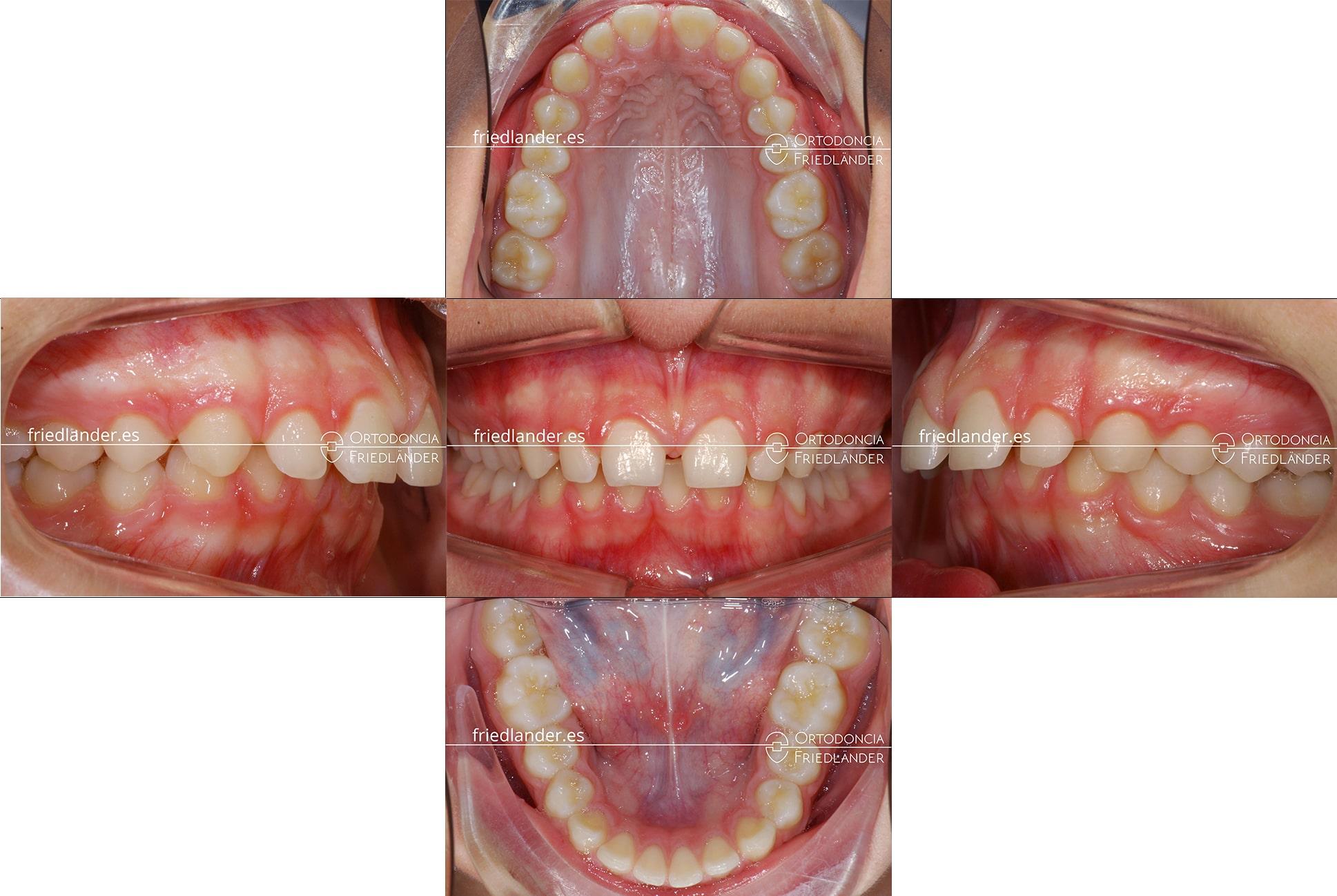 ortodoncia friedlander barcelona carillas laterales estetica antesv