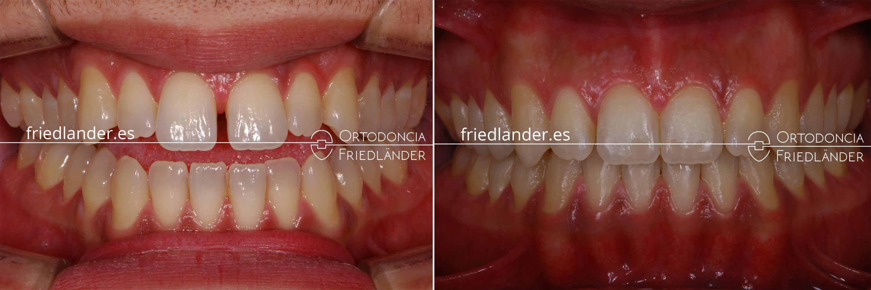 Ortodoncia Friedlander Barcelona mordida abierta antes y despues