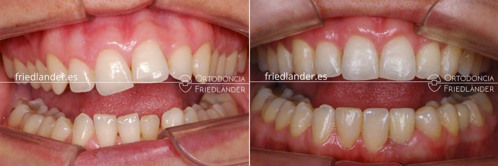 Ortodoncia Friedlander Barcelona agenesias implantes dentales caso complejo