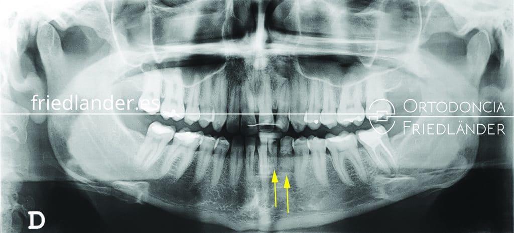 Ortodoncia Friedlander Barcelona agenesias implantes dentales caso complejo ortopantomografia