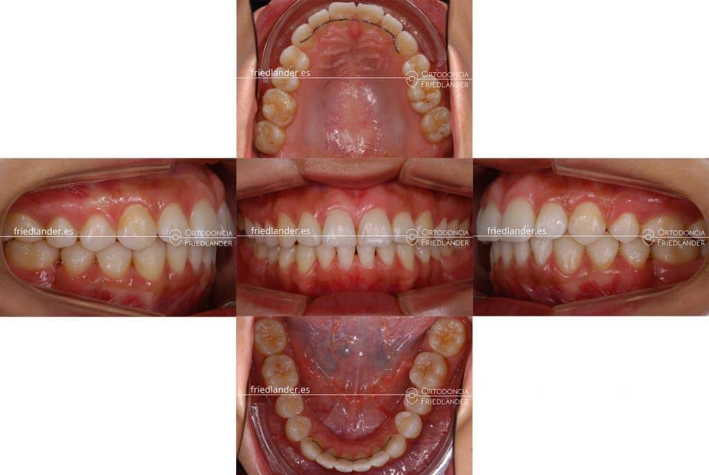 Ortodoncia Friedlander Barcelona invisalign lingual estetica microtornillos panoramica
