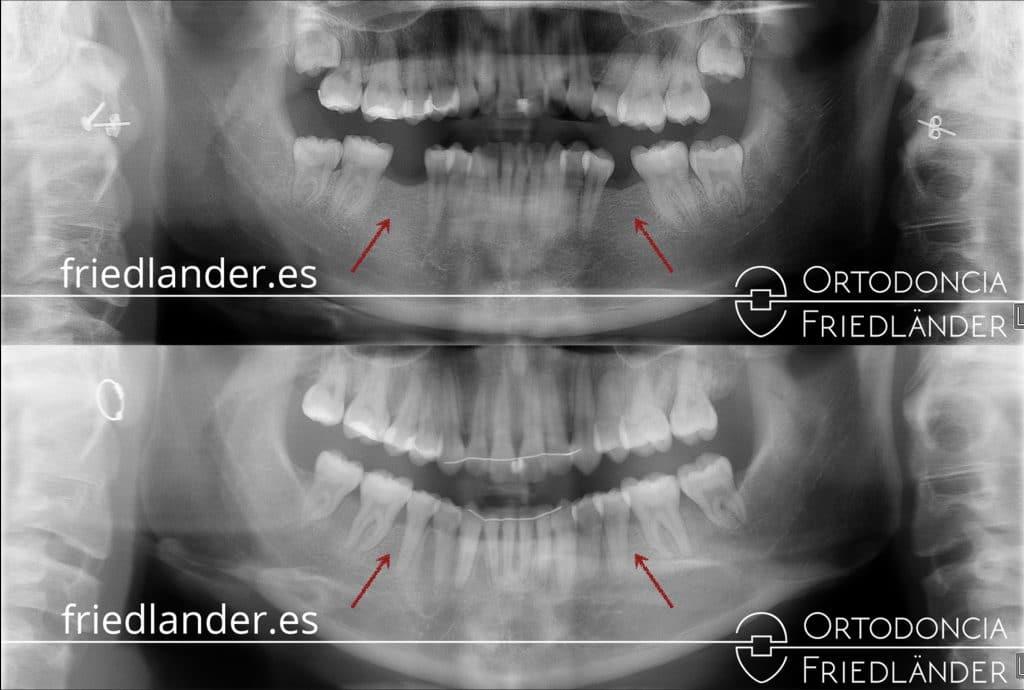 ortopantomografía antes y después del tratamiento dental