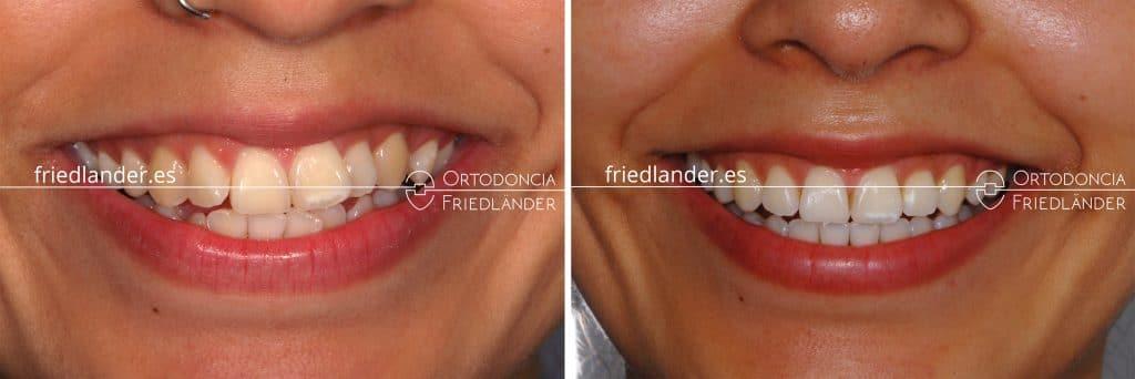 sonrisa después del tratamiento dental