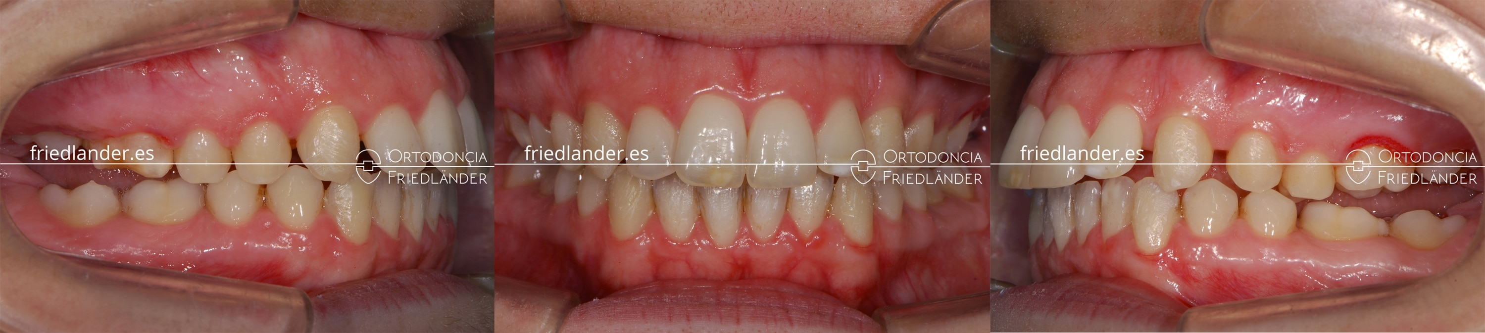 Ortodoncia Friedlander Barcelona tratamiento real invisalign transparente invisible