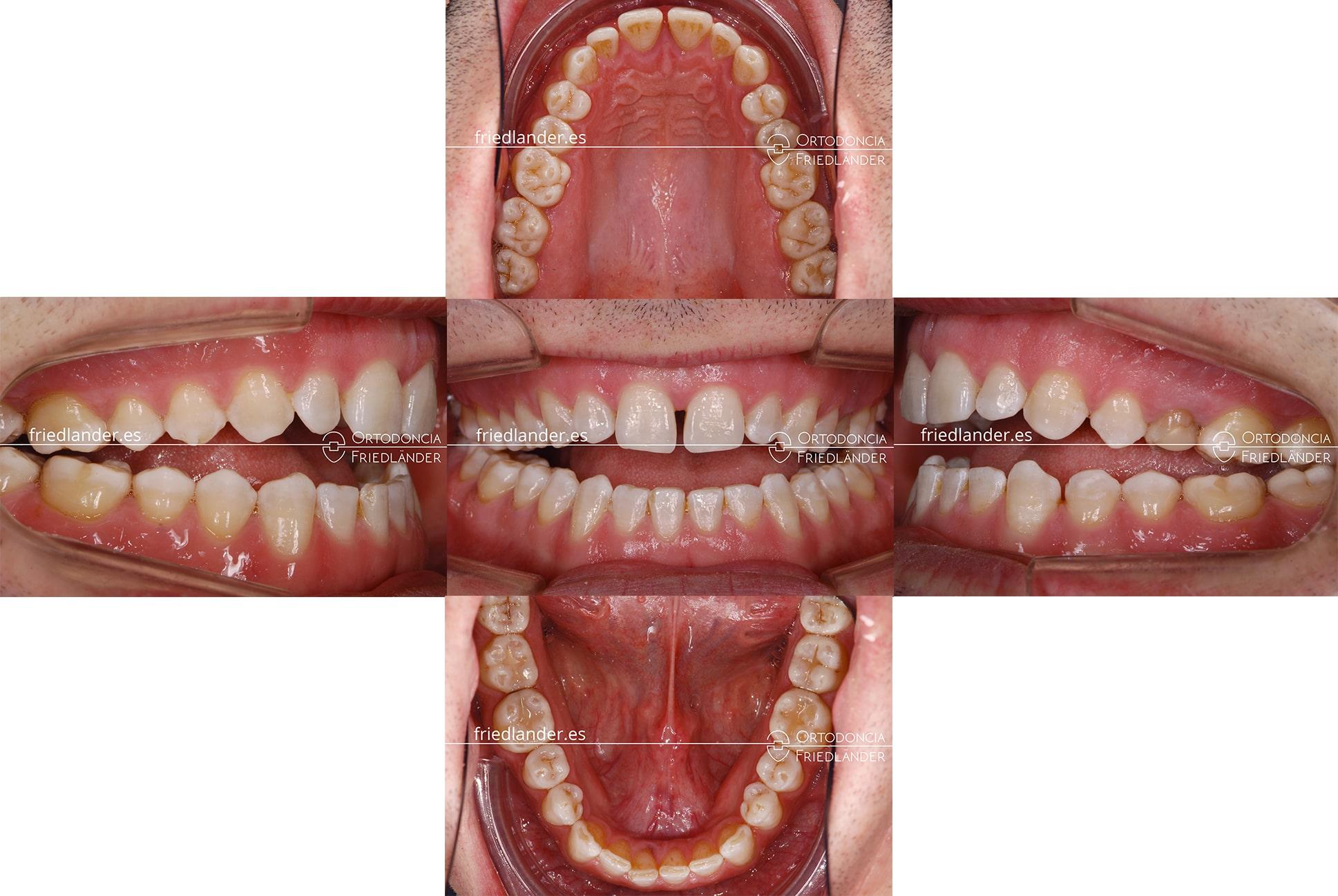 Ortodoncia Friedlander barcelona mordida abierta tratamiento real