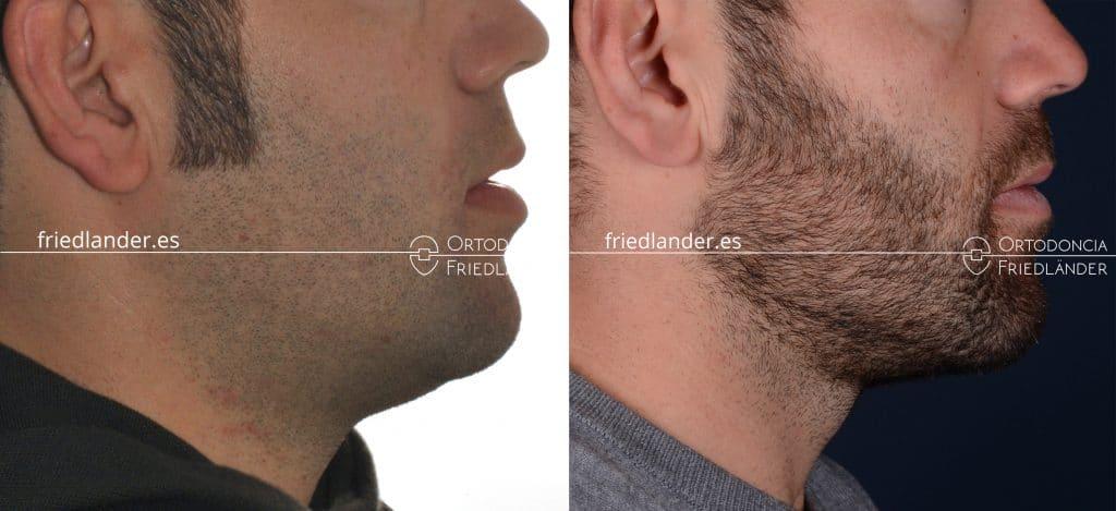 Ortodoncia Friedlander barcelona mordida abierta