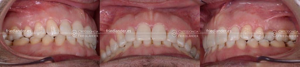 Ortodoncia Friedlander barcelona mordida abierta microtornillos